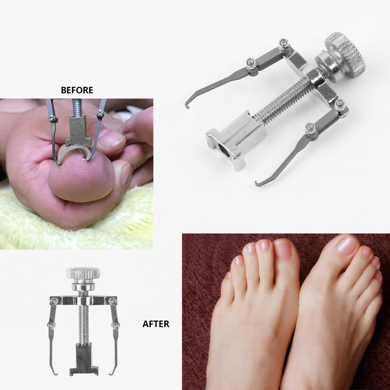 Professional Ingrown Toenail Kit Correction Tool Manicure Pedicure ...